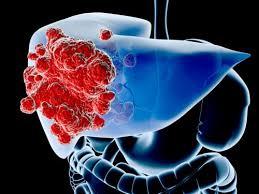 Phương pháp loại bỏ khối u gan không cần mổ