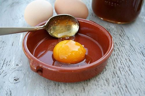Bé trai 15 tuổi bị gan nhiễm mỡ do ăn quá nhiều trứng