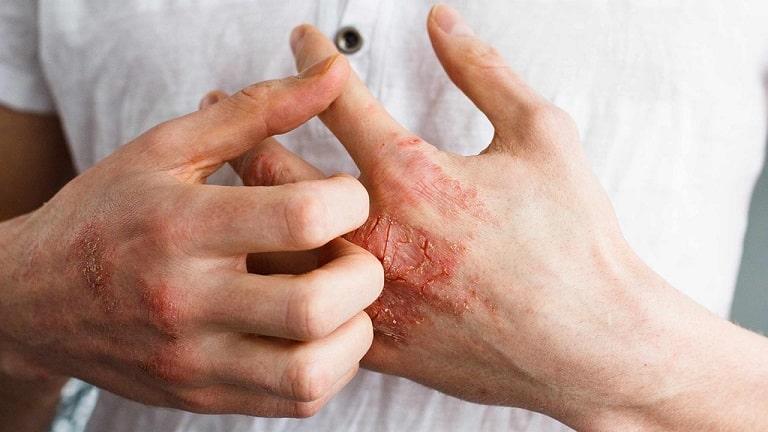 Hạn chế gãi khi bị bệnh để vùng tổn thương không bị lan ra