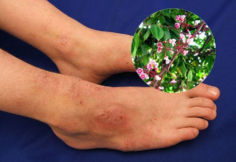 Sử dụng lá khế chữa viêm da cơ địa chỉ phù hợp với người bệnh nhẹ