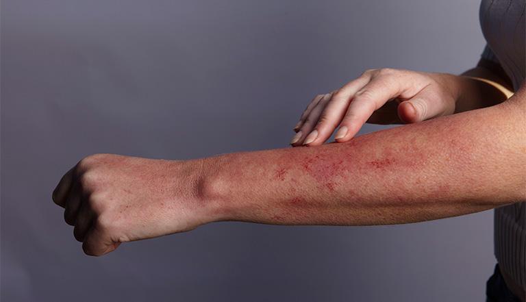 Các bệnh lý ngoài da gây biểu hiện da bị nổi mẩn đỏ ngứa nổi cục như muỗi đốt