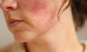 Nổi mẩn đỏ da mặt