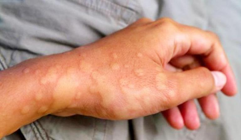 Khi bị dị ứng thời tiết người bệnh sẽ thấy có dấu hiệu nổi nhiều nốt mẩn kèm theo hiện tượng ngứa rát