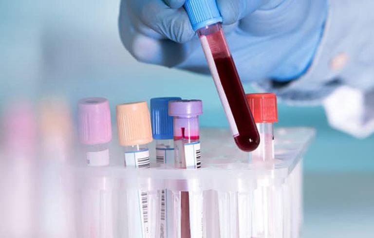 Chỉ định các xét nghiệm cần thiết để có phương pháp điều trị phù hợp