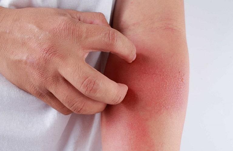 Dị ứng thuốc có thể gây mẩn đỏ, chóng mặt, thậm chí là sốc phản vệ
