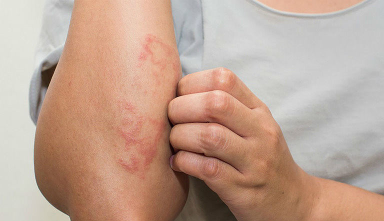 Nổi đỏ trên da là biểu hiện thường gặp ở tất cả người bị bệnh
