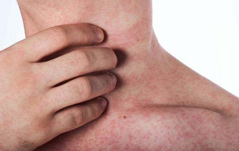 Nổi mẩn đỏ xuất hiện diện tích lớn người bệnh cần đi thăm khám bác sĩ