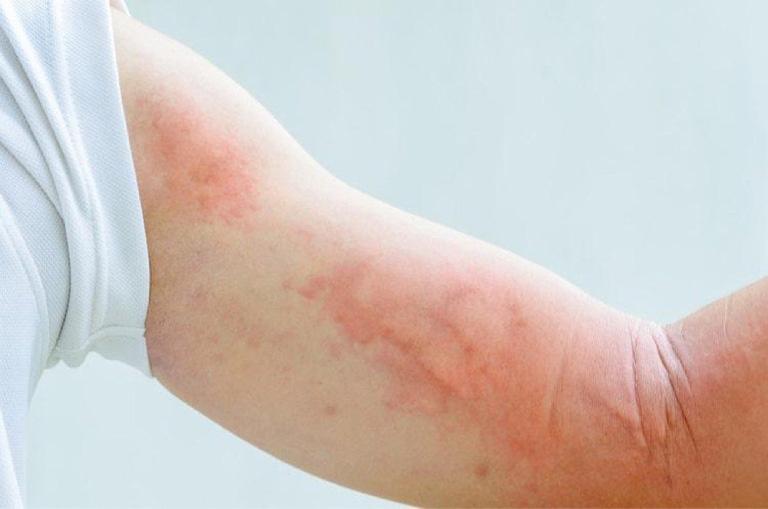 Nổi mẩn đỏ không ngứa là triệu chứng của nhiều bệnh lý