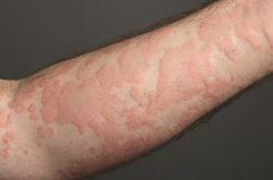 Nổi mẩn ngứa thành mảng là nguyên nhân của nhiều bệnh lý ngoài da