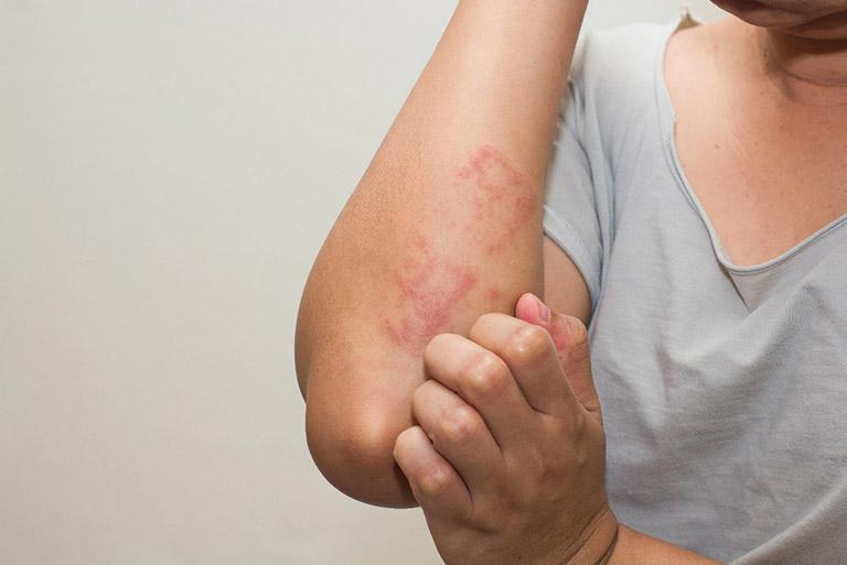 Lưu ý giữ vệ sinh vùng da mẩn ngứa để bệnh nhanh khỏi