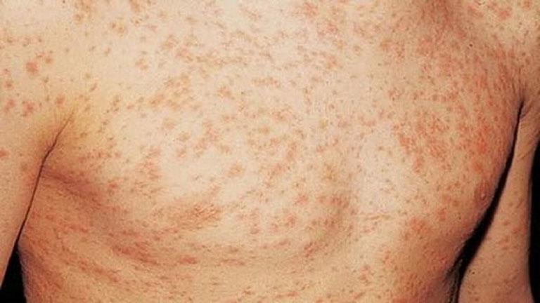 Nổi mề đay do HIV - dấu hiệu cảnh báo căn bệnh nguy hiểm