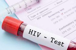 Xét nghiệm máu để là test thường dùng để xác định bệnh HIV