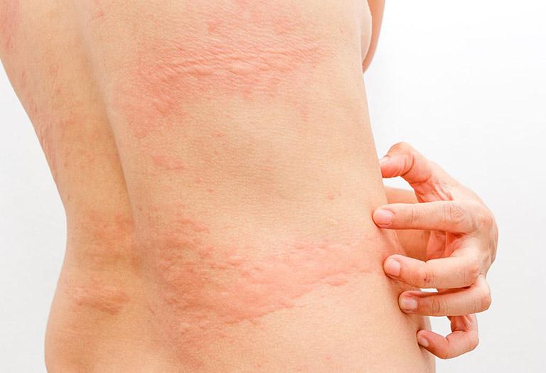 Các vết mề đay có thể nổi sần, ửng đỏ gây ngứa ở bà bầu