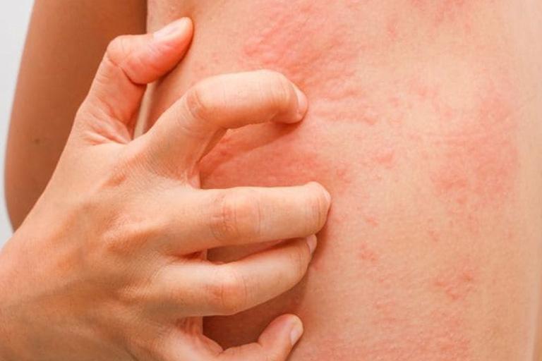 Nhiều nguyên nhân dẫn đến bệnh nổi mề đay lâu ngày không khỏi