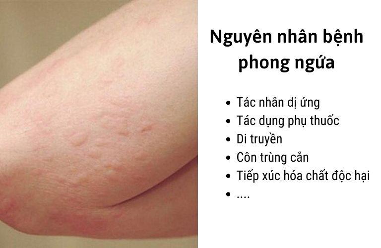 Nhiều nguyên nhân gây bệnh