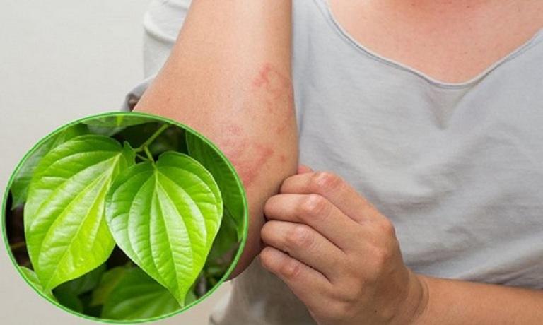 Sử dụng trầu không trị viêm da cơ địa chỉ phù hợp với người bệnh nhẹ, mới khởi phát