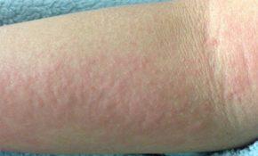 Trời nắng nóng bị nổi mẩn đỏ ngứa là tình trạng gây ra bởi nhiều nguyên nhân