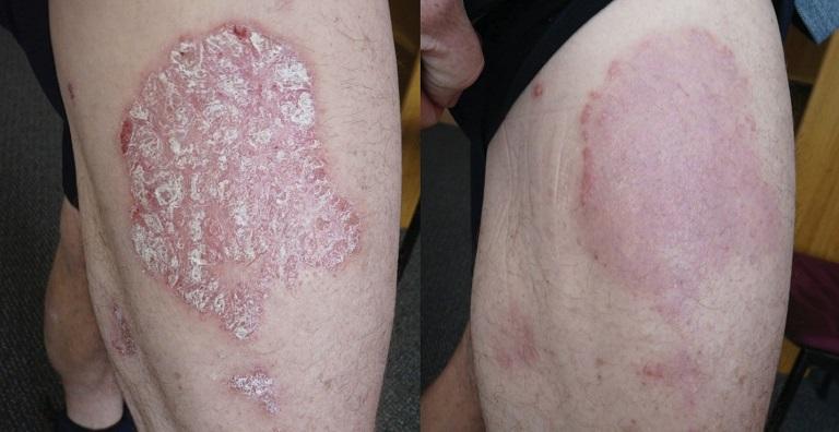 Theo các nhà khoa học, bệnh có thể do hệ thống miễn dịch hoặc di truyền