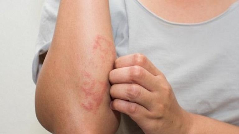 Chứng bệnh gây tổn thương ngoài da khiến người cảm thấy ngứa ngáy khó chịu