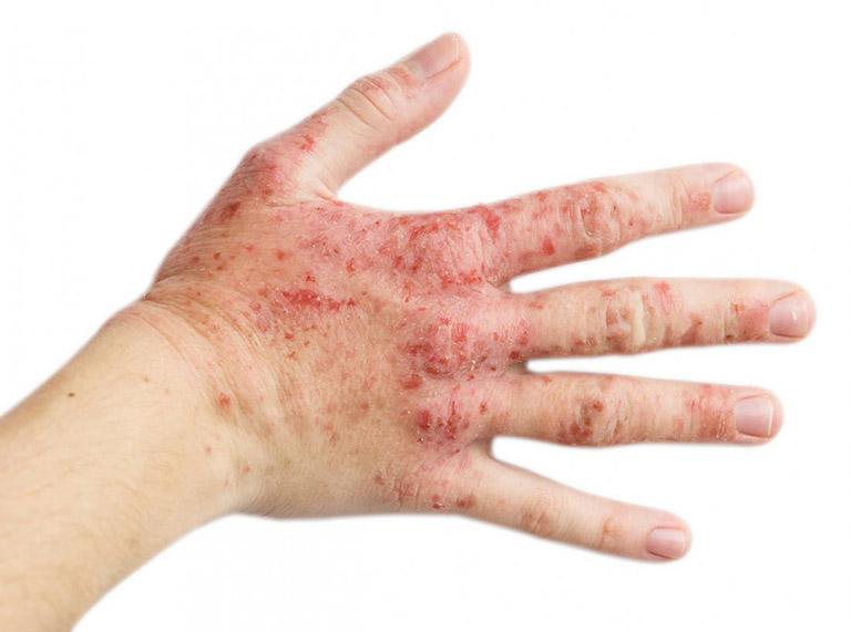 Tay là một trong những vị trí dễ bị tổn thương do vi khuẩn gây ra