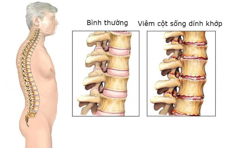 Viêm cột sống dính khớp cũng là một nguyên nhân khiến người bệnh khó vận động