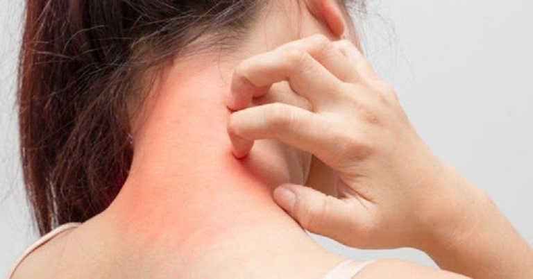 Ngứa da là biểu hiện đầu tiên khi hắc lào khởi phát