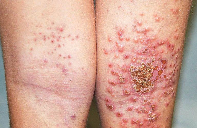 Chàm ướt không nguy hiểm đến tính mạng nhưng ảnh hưởng nghiêm trọng đến người bệnh