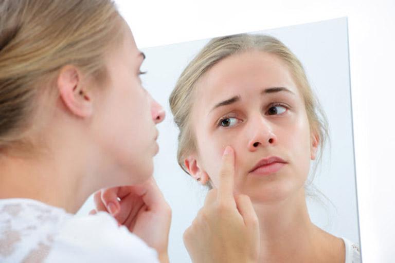 Bệnh Eczema ở trẻ em có thể để lại sẹo ngay cả khi đã được điều trị khỏi