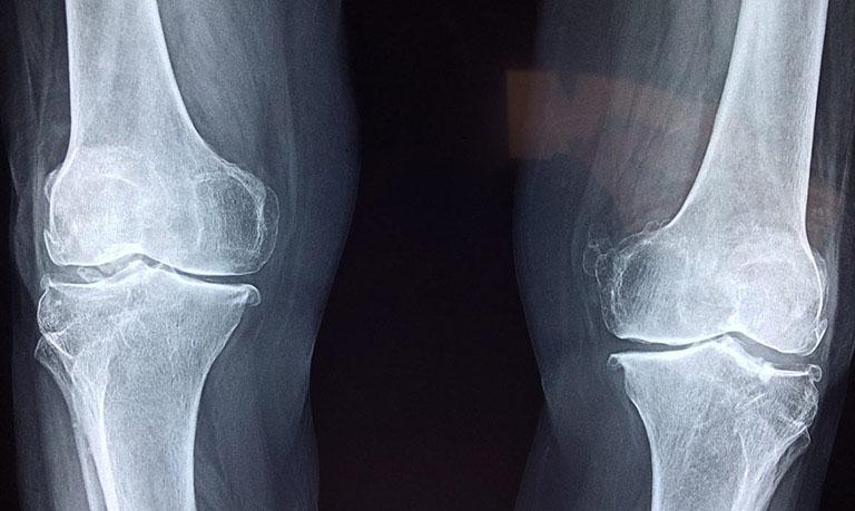Chụp X-quang là cách tốt nhất để nhận biết mức độ thoái hóa