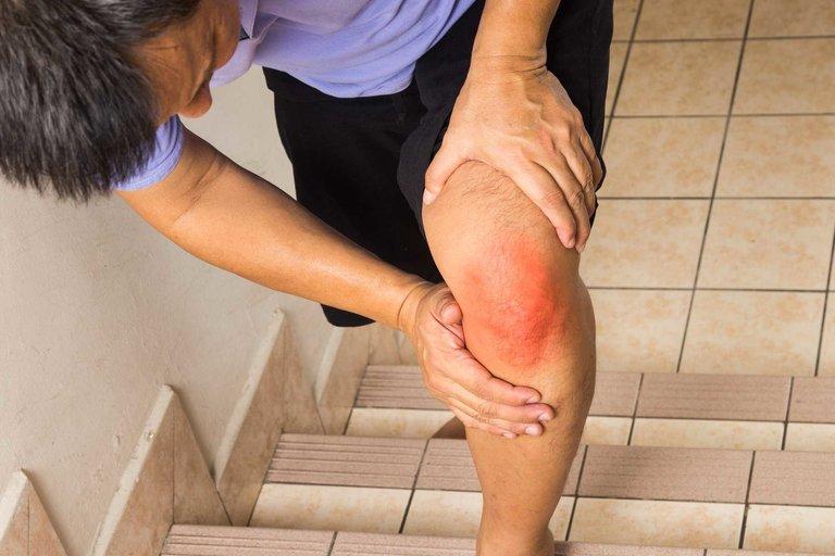 Chủ động thực hiện các biện pháp ngăn ngừa để phòng tránh bệnh lý về xương khớp