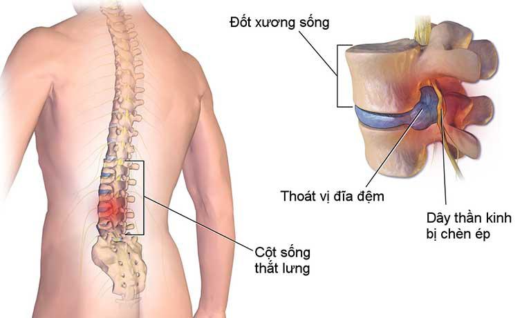 Bệnh thoát vị đĩa đệm - bệnh lý xương khớp ngày càng phổ biến