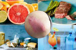 Bệnh vảy nến nên ăn gì để tốt cho sức khỏe