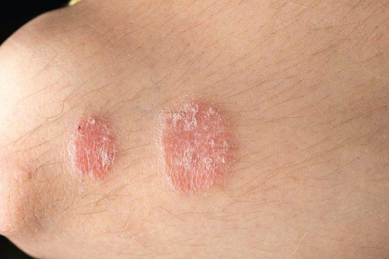 Vảy nến là tình trạng viêm da, tạo nên những vảy lớn trên da gây ngứa ngáy, khó chịu