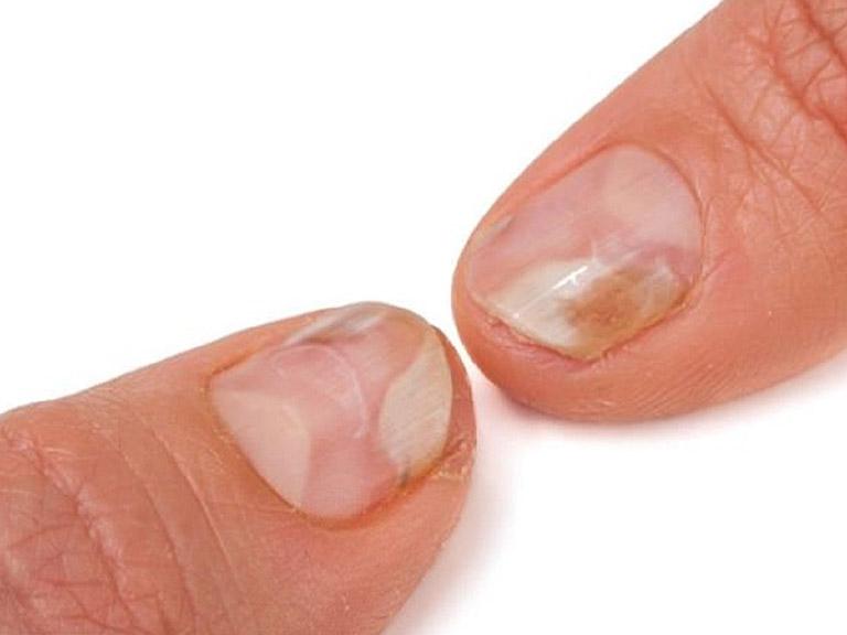 Vảy nến móng tay là tình trạng tế bào da ở móng tay bị sản xuất quá nhiều
