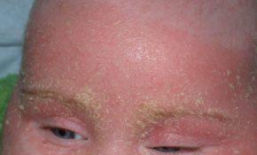 Bệnh vảy nến ở trẻ em là bệnh mã tính về da