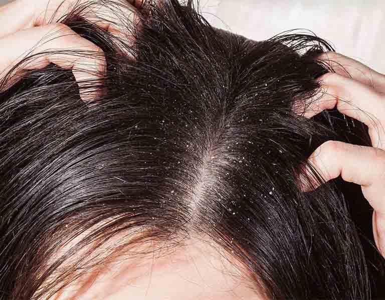 Bệnh về da đầu