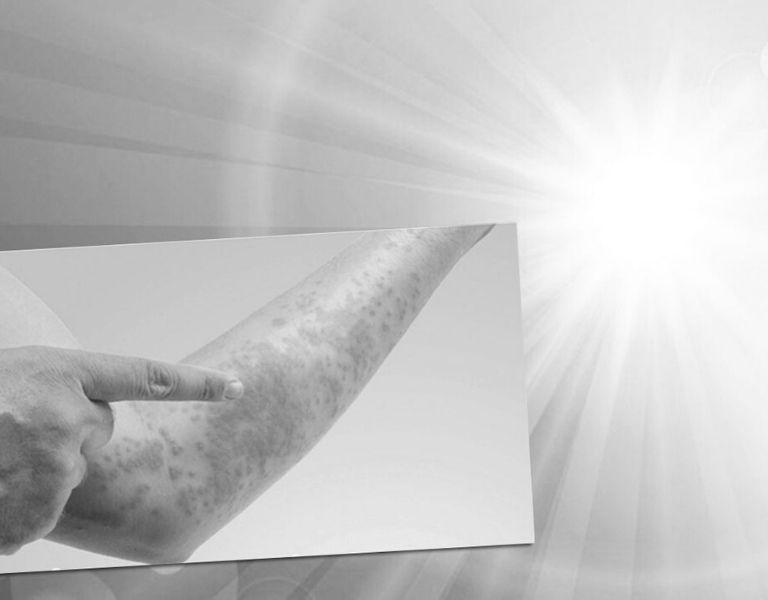 Điều trị bệnh bằng cách cho vùng da bị nhiễm bệnh tiếp xúc với ánh sáng mặt trời