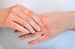 Bệnh viêm da là gì
