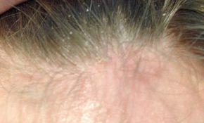 triệu chứng viêm da tiết bã da đầu ở người lớn