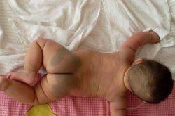 Chàm xanh ở trẻ sơ sinh