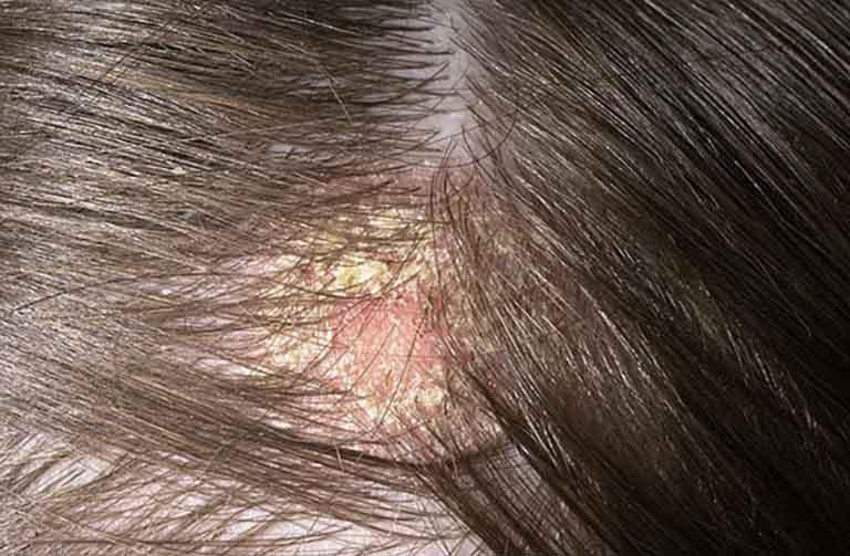 Bệnh nấm da đầu gây nhiều khó chịu ảnh hưởng đến sinh hoạt hàng ngày của người bệnh
