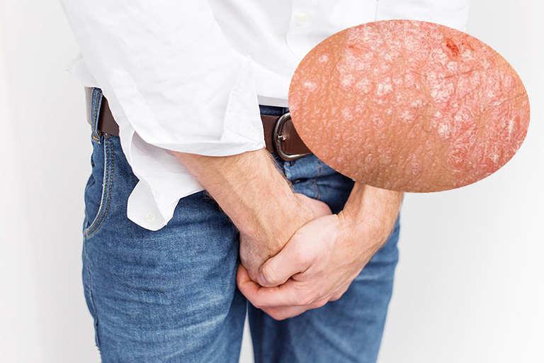 Xuất hiện các mảng da sần đỏ, có mụn nước là triệu chứng điển hình của bệnh