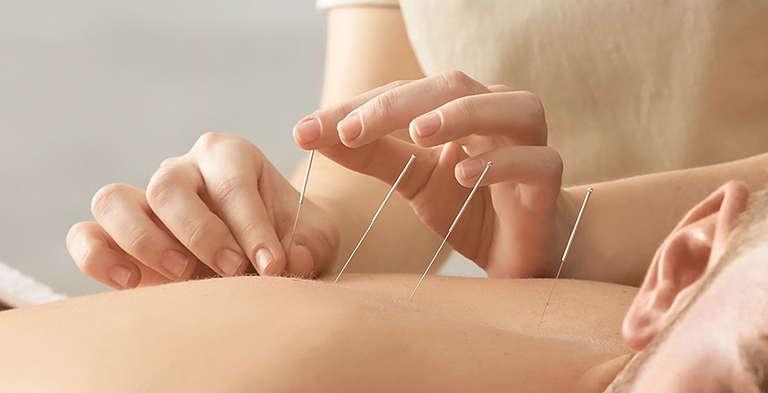 Châm cứu bấm huyệt giúp nam giới thư giãn và cải thiện sinh lý