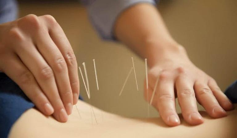 Châm cứu nhằm mục đích đả thông kinh lạc, lưu thông khí huyết giúp phục hồi chức năng xương khớp