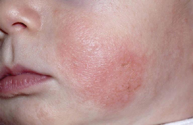 Chàm thể tạng - chứng bệnh ngoài da liên quan đến kháng nguyên IgE