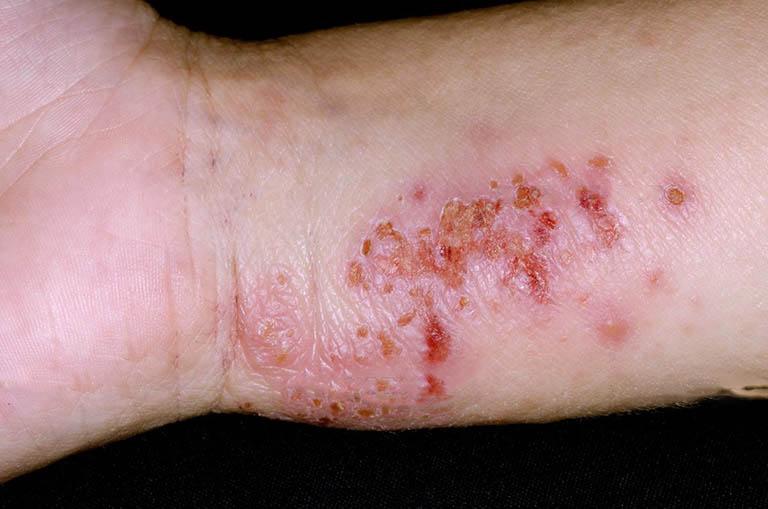 Bệnh chàm vi khuẩn - bệnh lý có khả năng lây nhiễm