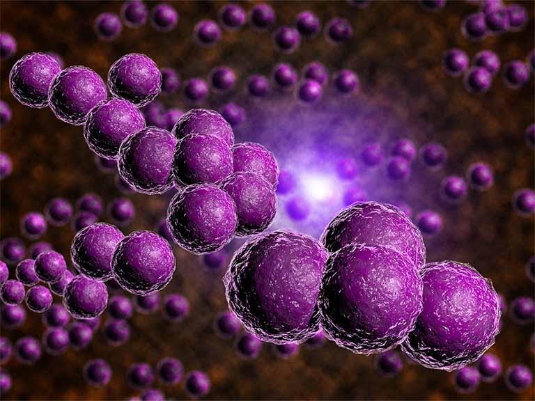 Bệnh chủ yếu gây ra bởi vi khuẩn, vi nấm