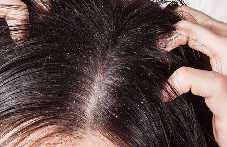 Viêm da đầu ảnh hưởng đến đời sống sinh hoạt của người khá lớn