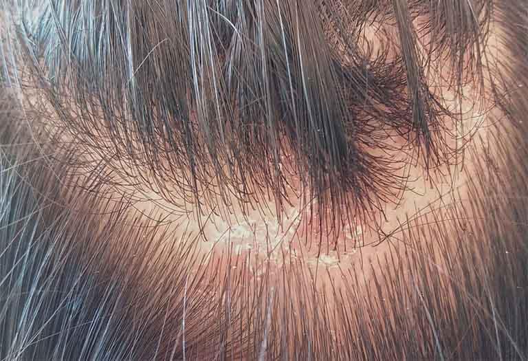 Viêm da đầu khiến người bệnh cảm thấy ngứa ngáy, khó chịu