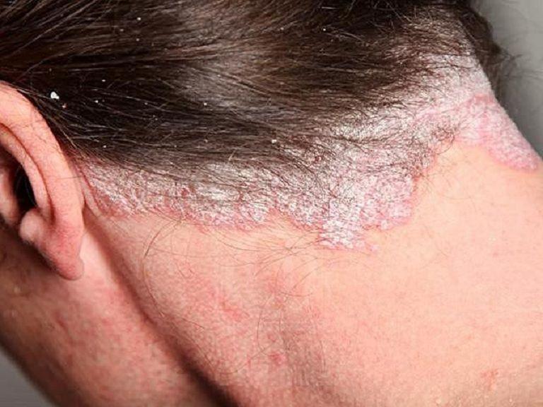 Vảy nến cũng là một trong những nguyên nhân dẫn tới da bị ửng đỏ và ngứa ngáy
